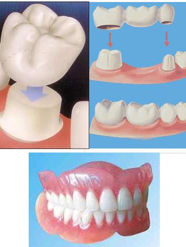 Avantajele unei proteze dentare