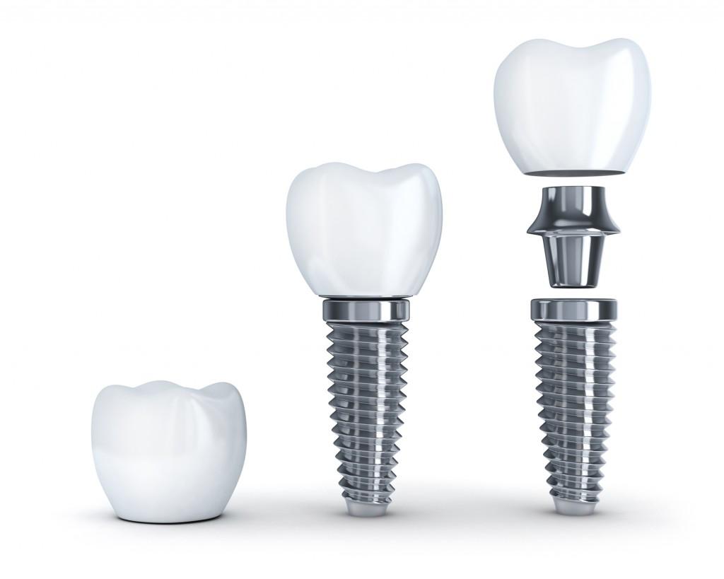 Implantul dentar soluția ideală
