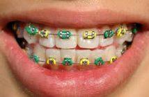 Porti aparat dentar?