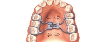 Cat de importante sunt aparatele dentare?