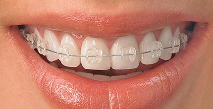 Cel mai performant aparat dentar