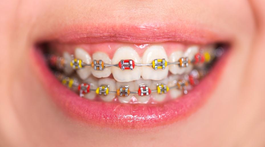 Cat costa aparatul dentar?
